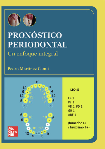 Pronóstico periodontal. Un enfoque integral